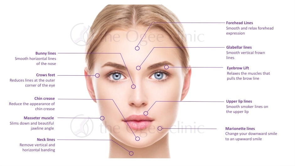 Wrinkle Treatment botox-benefits