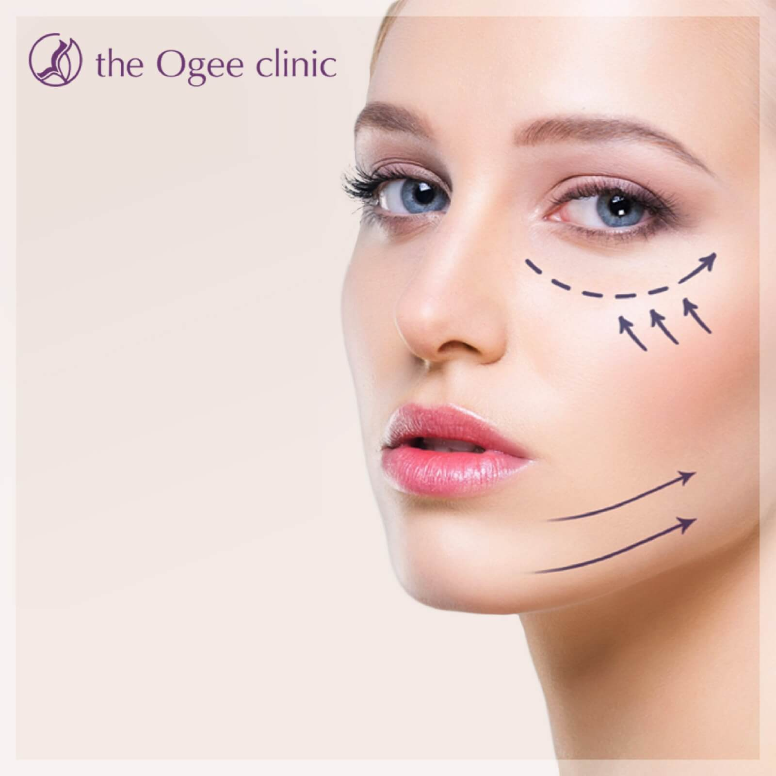 TheOgeeClinic - Treatment Ultraskin HIFU