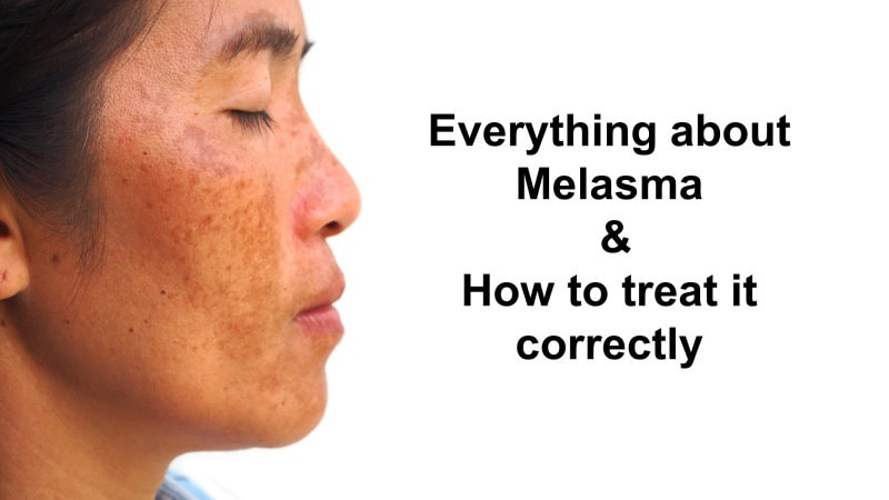 Everything about Melasma & How to treat it correctly