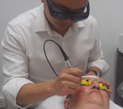 Laser Treatment for Skin Pigmentation by Aesthetic Doctor, Heng Wee Soon, The Ogee Clinic