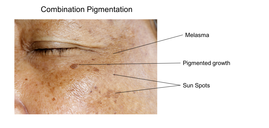Pigmentation on face can also be a combination of the various types
