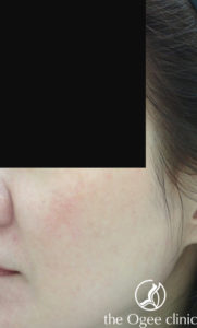 resolved melasma condition 1