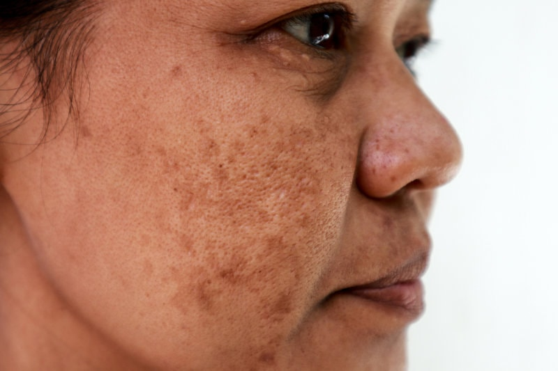 Skin problem, Closeup skin face asian women with spot melasma.
