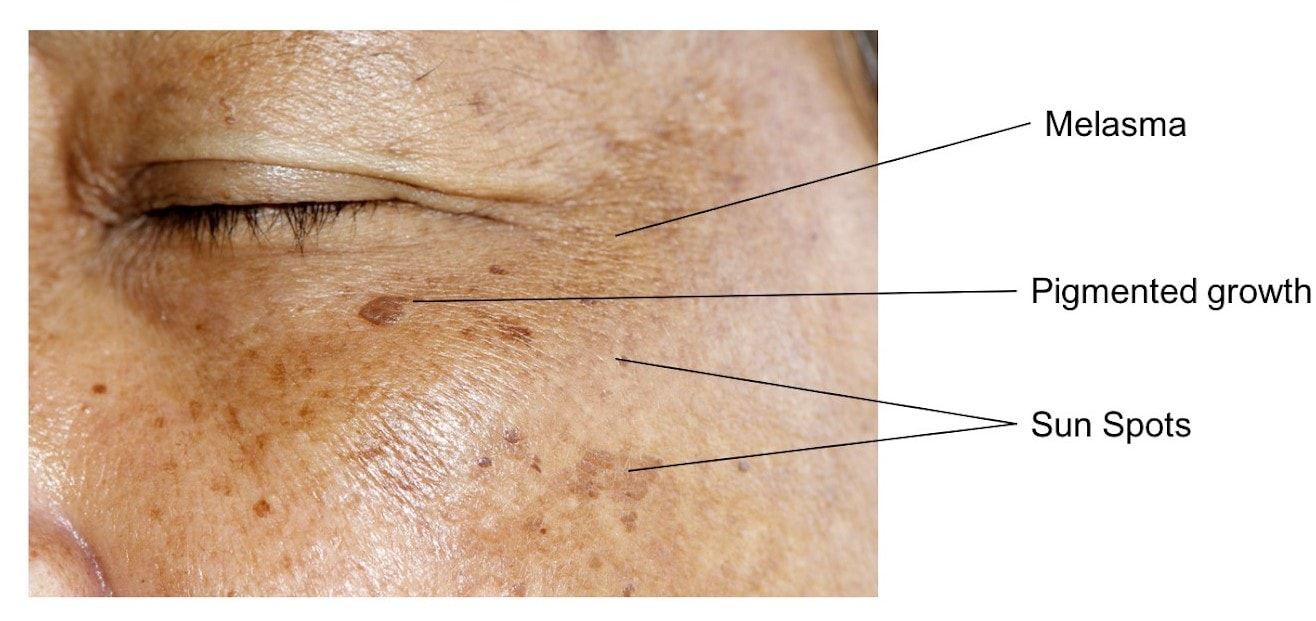 pigmentation diagram